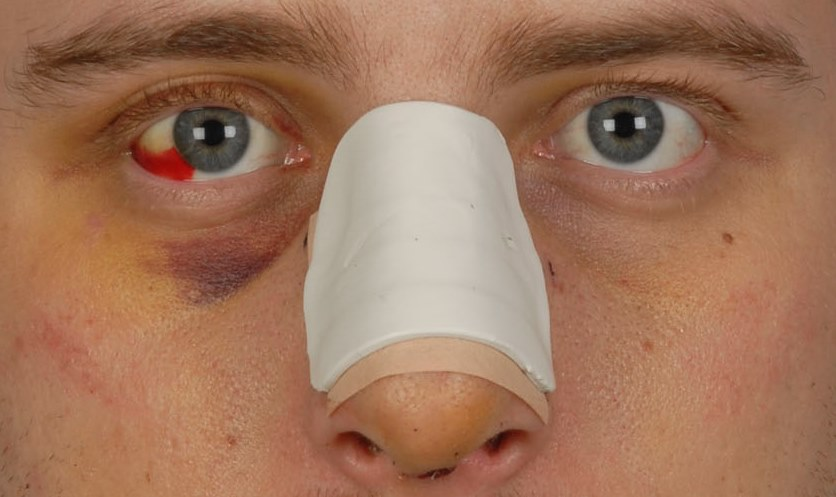 operatie neusslijmvlies