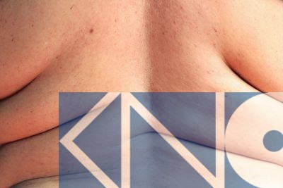 KNO.nl - preventie - overgewicht